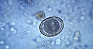 16253-micrograph-of-a-fertilized-round-worm-egg-th-300x203-300x203